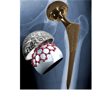 Discovery of new materials for hip implants