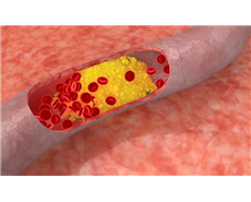 Research towards making good cholesterol which treat disease